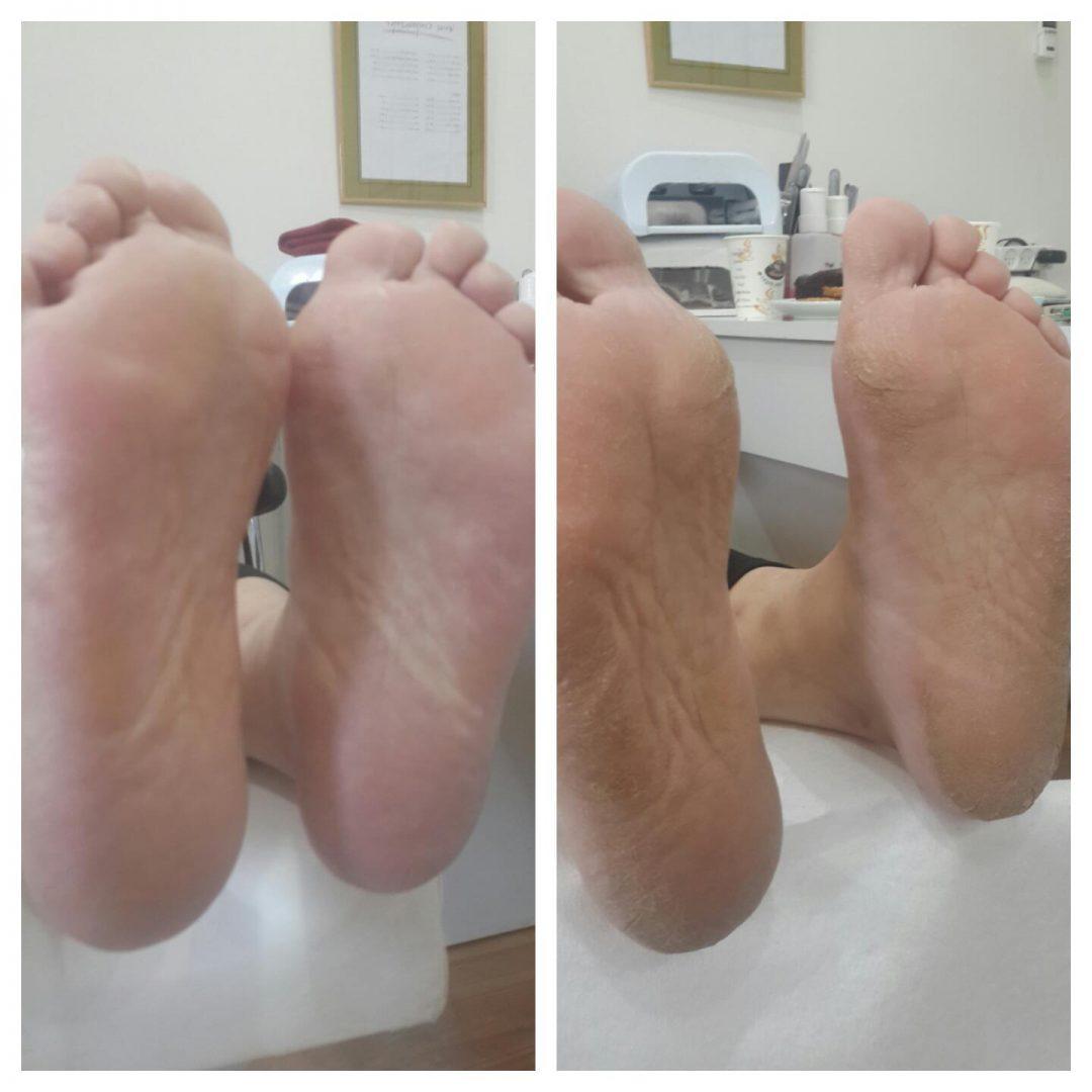 טיפול בעור יבש ברגליים