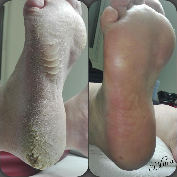 עור יבש ברגליים