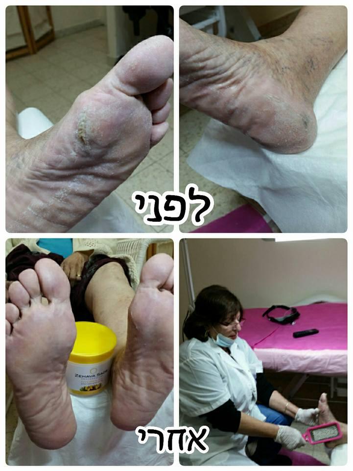 עור יבש ברגליים - לפני ואחרי
